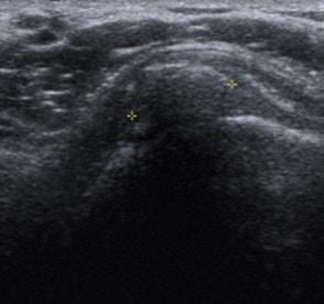 imagen 2. Imagen ecográfica que muestra calcificación en el supraespinoso