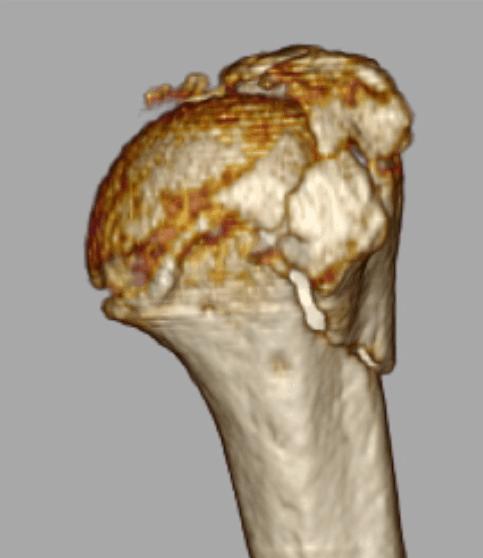 Imagen 2. Reconstrucción 3D fractura humero