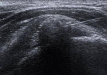 imagen 3. Imagen ecográfica de una punción y lavado eco-guiada de una tendinitis calcificante