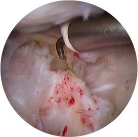 Imagen 2 Tratamiento artroscópico de capsulitis adhesiva